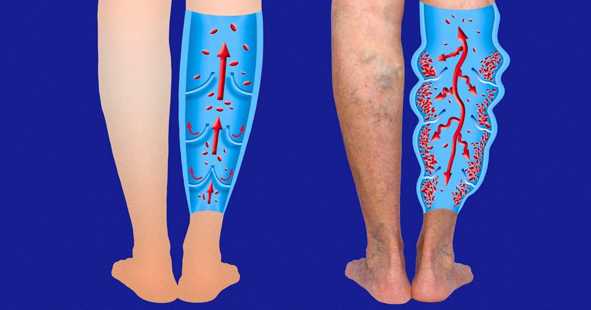exerciții necesare în picioarele varicoase)